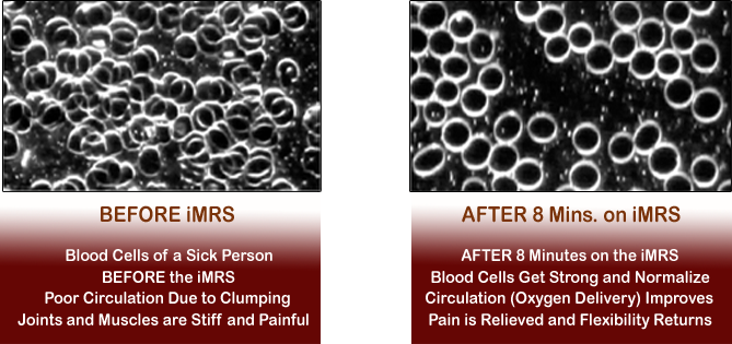 PEMFs increase blood circulation and enhance oxygen delivery
